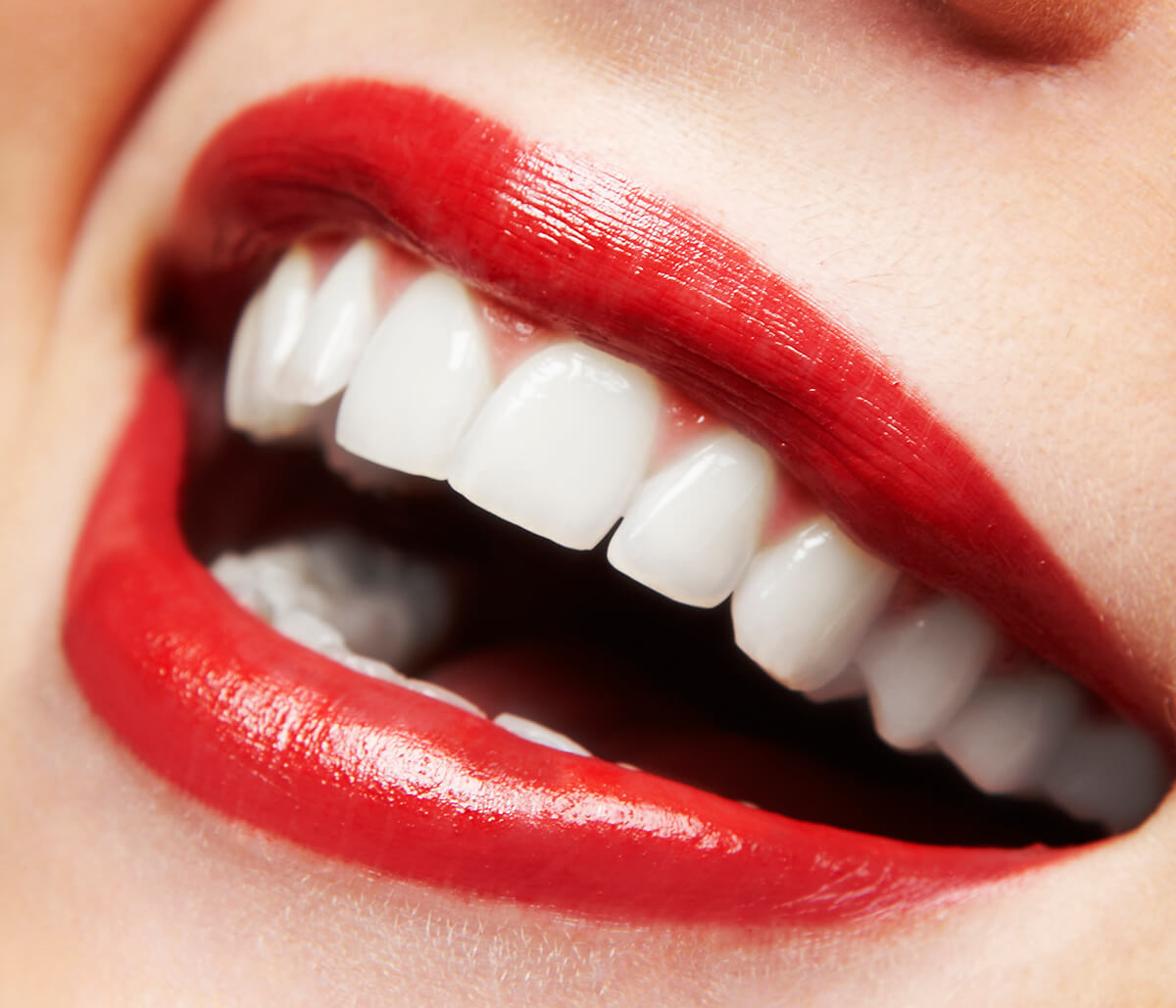 What Cosmetic Dental Care is Available in Charleston, South Carolina Area?