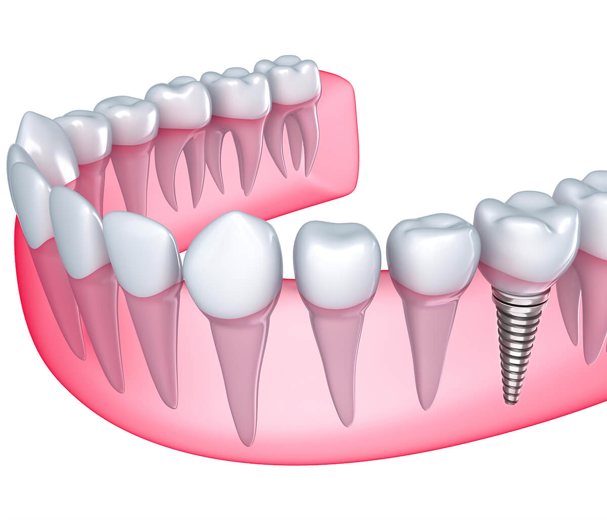 Tips for Finding the Best Dental Implant Dentist in Charleston SC Area