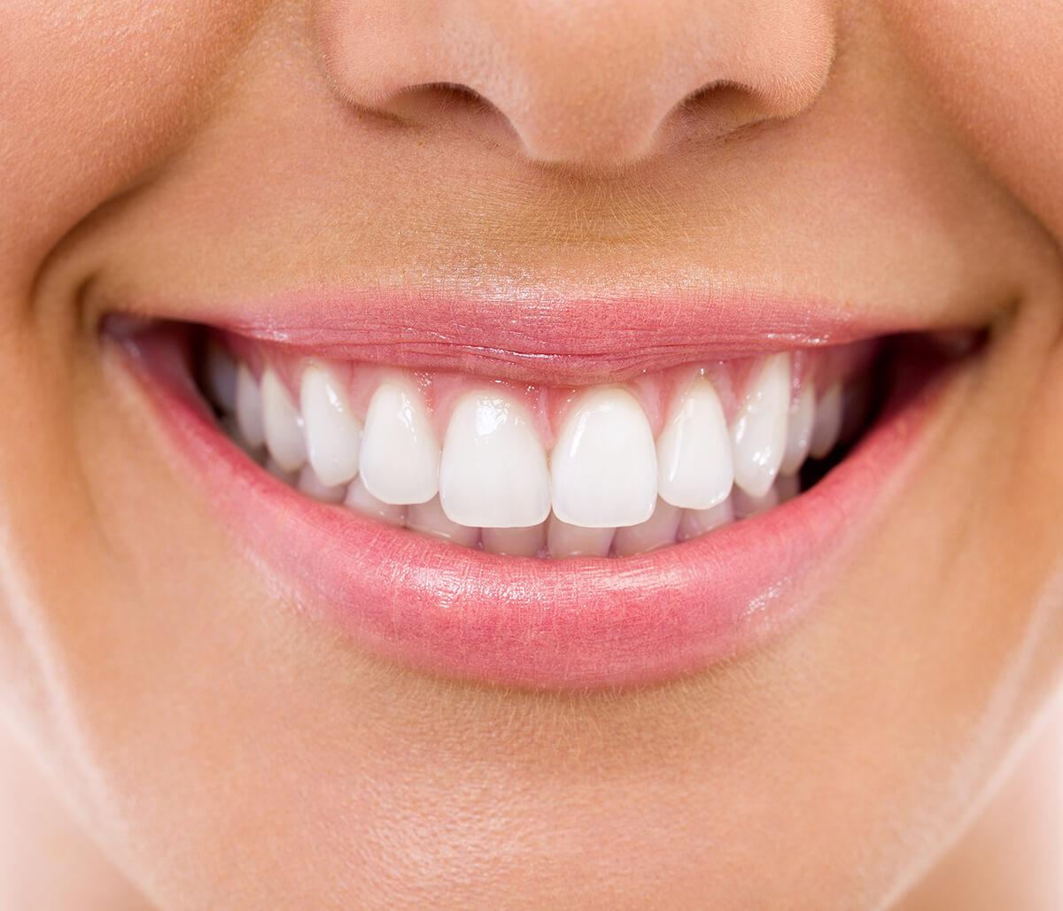 Who Has Affordable Teeth Veneers in Charleston, SC Area?