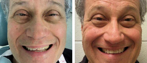 Chipped Tooth - Before and After