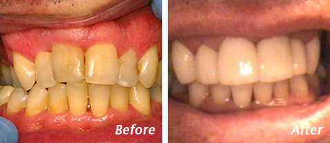 Cosmetic Dentistry - Before and After