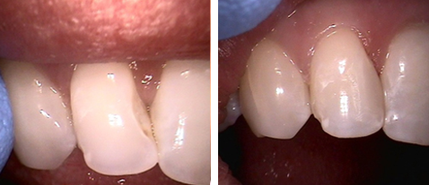 Dental Bonding - Before and After