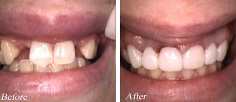 Dental Bridges - Before and After