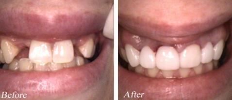 Dental Bridges - Before and After