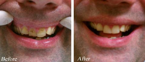 Dental Veneers - Before and After
