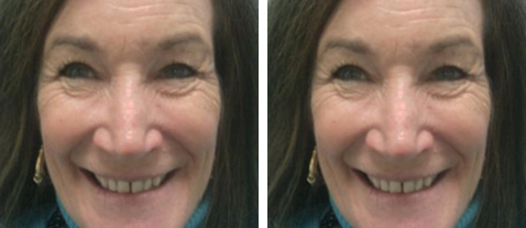 Diastema Closure - Before and After