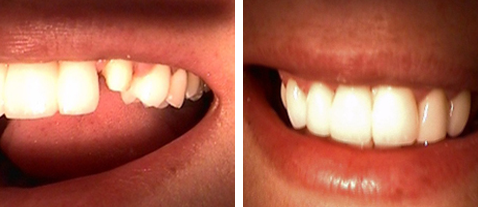 Porcelain Crown - Before and After