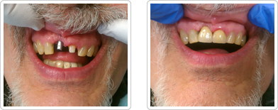 Crown and Implants - Before and After1