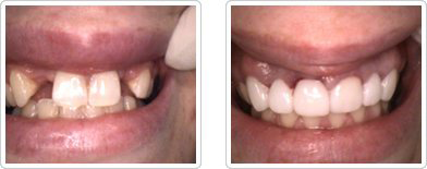 Dental Bridges - Before and After1