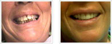 Dentures - Before and After1