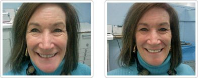 Diastema Closure - Before and After1