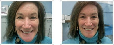 Dentist Charleston - Diastema Closure Before and After Case 4