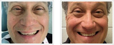 Dentist Charleston - The Chipped Tooth Before and After Case 5