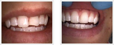 Dentist Charleston - Dental Bonding Before and After Case 1