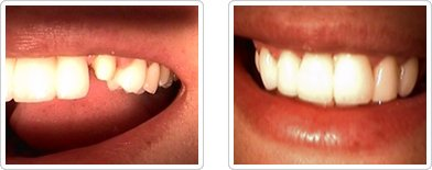 Dentist Charleston - Porcelain Crown Before and After Case 7