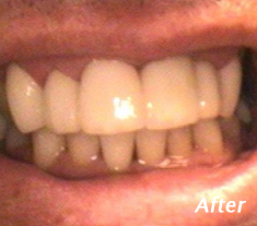 Cosmetic Dentistry Procedures Charleston - After Treatment
