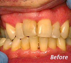 Cosmetic Dentistry Procedures Charleston - Before Treatment